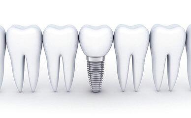 抜歯即時インプラントも可能