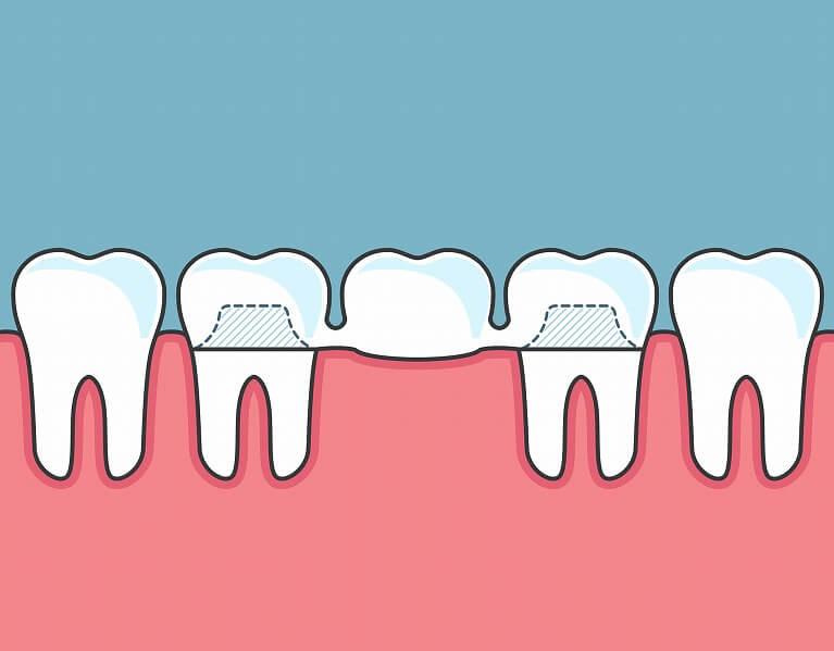 入れ歯・ブリッジとの比較
