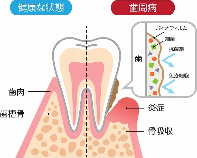 歯周病とは?