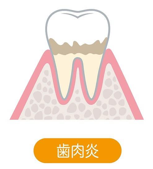 歯肉炎・軽度歯周炎