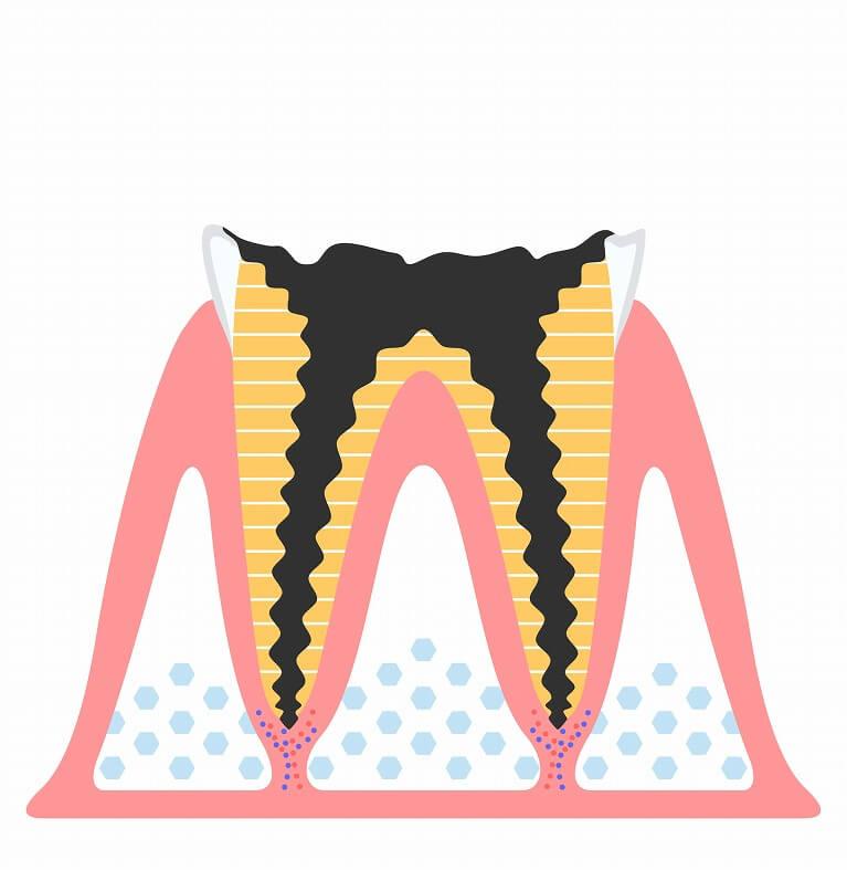 重度のむし歯~根管治療~