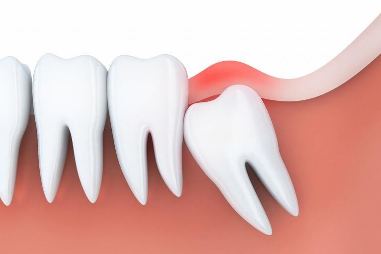 抜歯をおすすめするケース